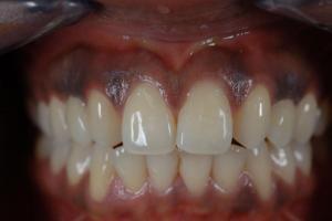 Emax-Kronen auf Implantate