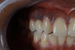 Emax-Kronen auf Implantate 2