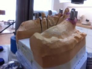 Zirkonbrücken auf Implantate
