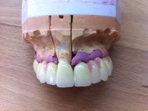 Zirkonbrücken aus Implantat